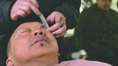 فن تنظيف مقلة العين عند الحلاق في الصين
