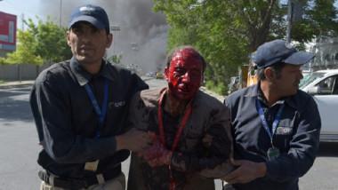 تفجير انتحاري بالحي الدبلوماسي في كابول  يسفر عن 80 قتيلا وأكثر من 300 جريح