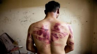 مطالبات بمعاقبة ضابط التحقيق المتسبب في وفاة شاب بالتعذيب