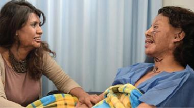 هجمات «الحمض الكاوي» عنف يتزايد ضد النساء بالعالم