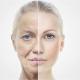 كيف تعوضين نقص الكولاجين المسؤول عن شباب بشرتك؟
